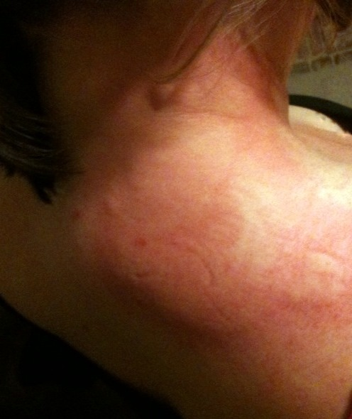 Get Even Skin Texture Naturally